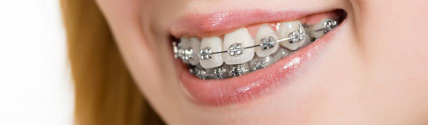 banner-ortodoncia-convencional