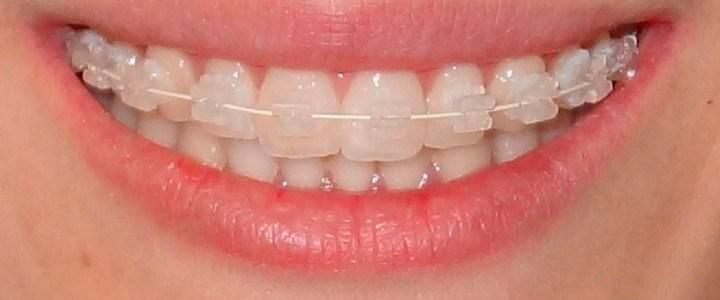 ortodoncia-autoligable-estetica-y-rapida-a-bajo-costo_2