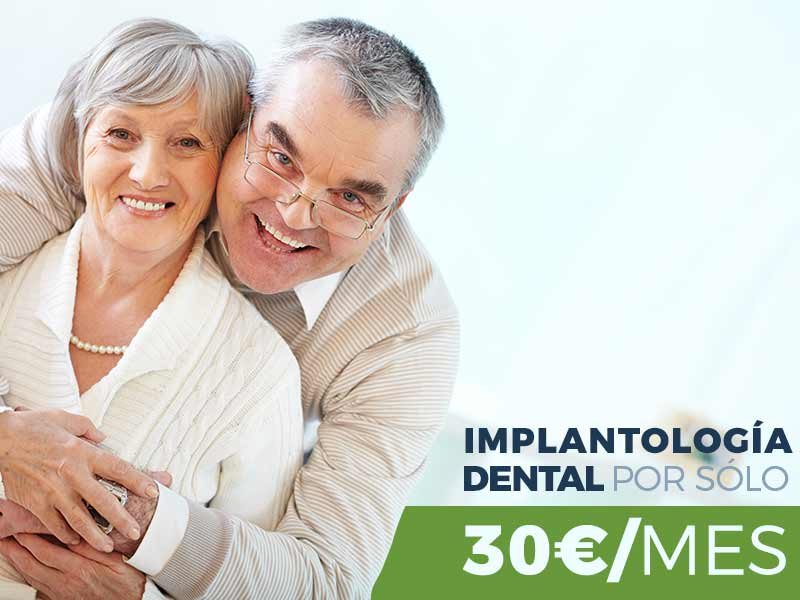 implantologia-dental-sevilla