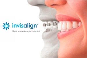 ¿Cuáles son las ventajas de la ortodoncia Invisalign®?