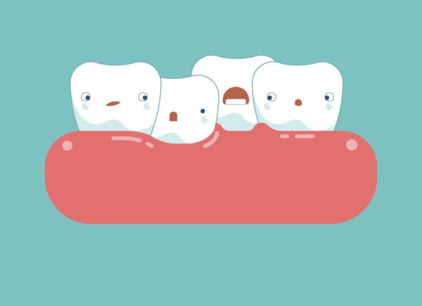 ¿Cómo se soluciona el apiñamiento dental?