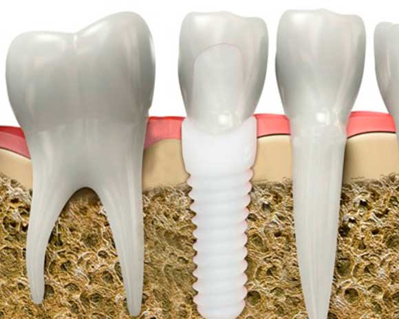 implante dental de zirconio dentalbell