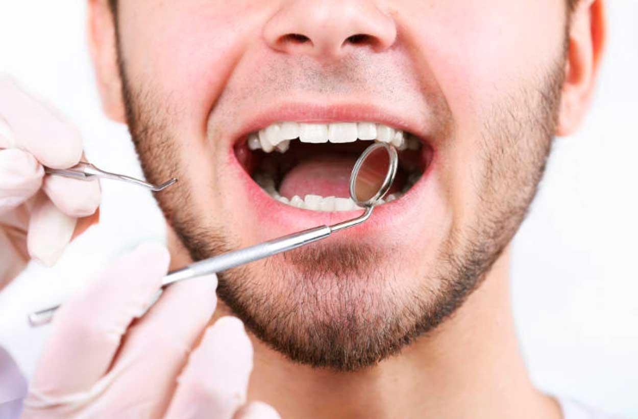 tratamiento de la periodoncia en Sevilla