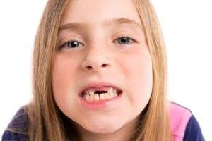 ¿Por qué no debo arrancar los dientes de leche a los niños?