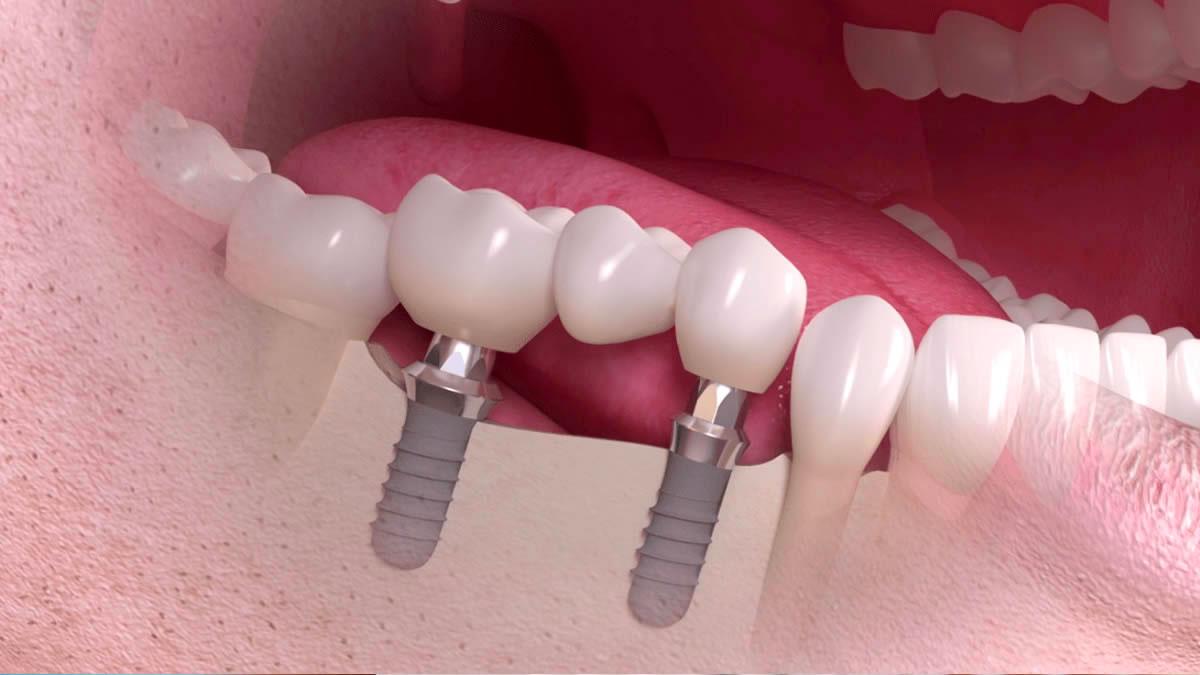 rehabilitacion-dental-tratamiento
