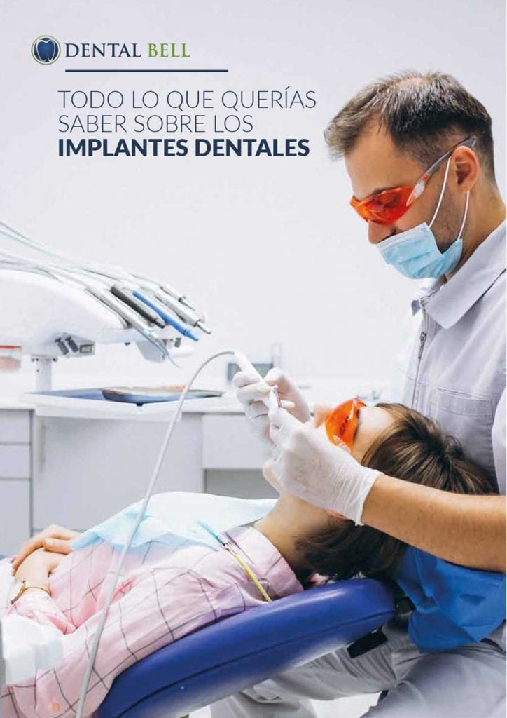 todo-sobre-implantes-dentales-1