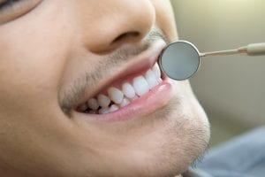 ¿Cuándo se recomienda la reconstrucción/incrustación dental?