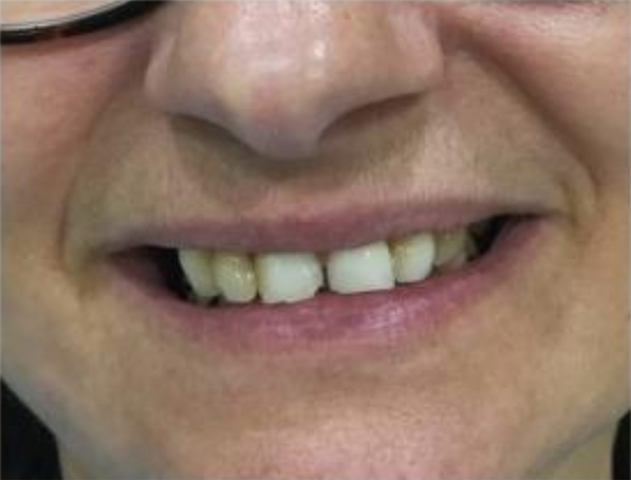 Recuperar la funcion masticatoria posterior y la estetica dental antes