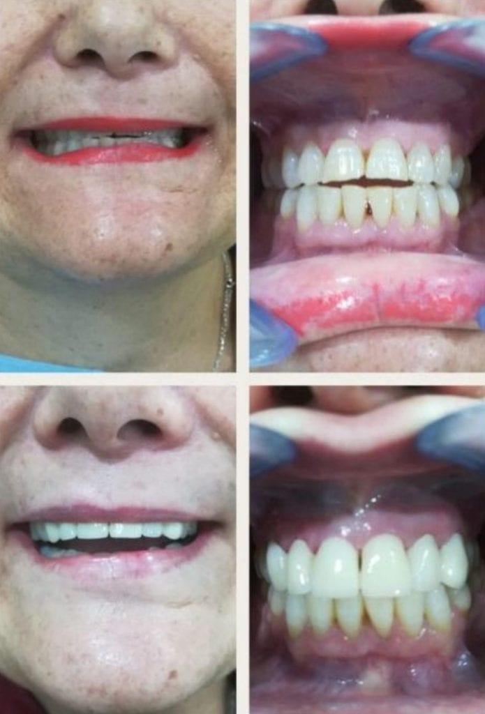 mejora de la estetica dental antes y despues