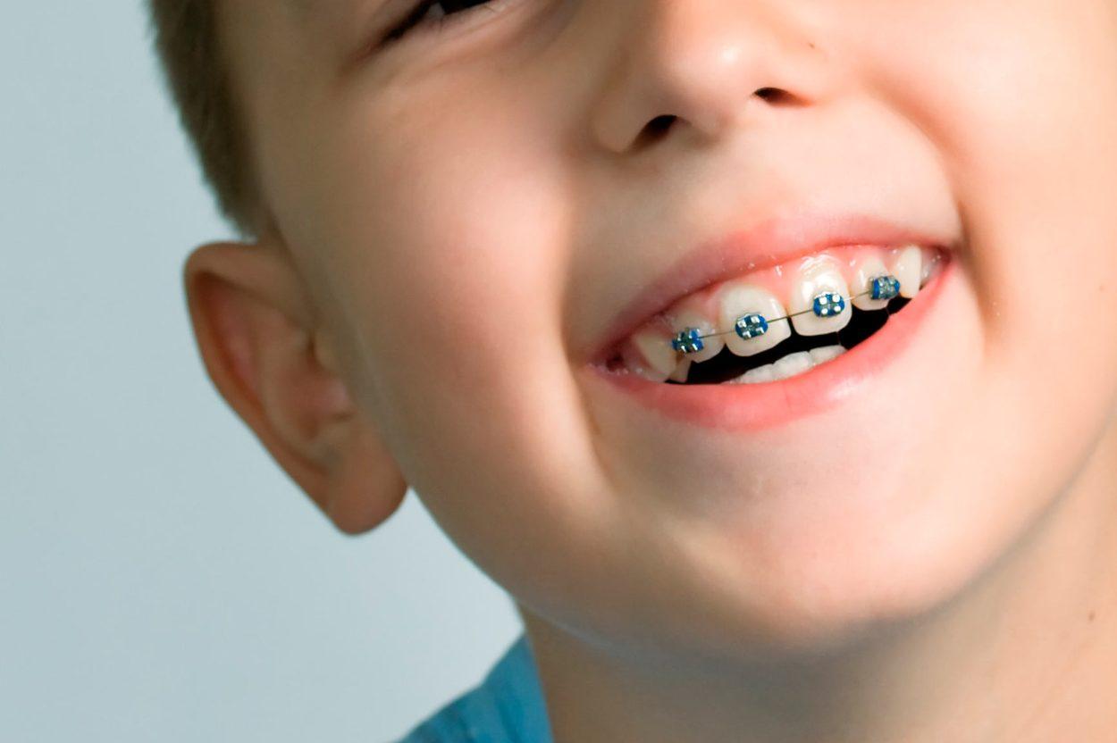 ortodoncia infantil dentalbell