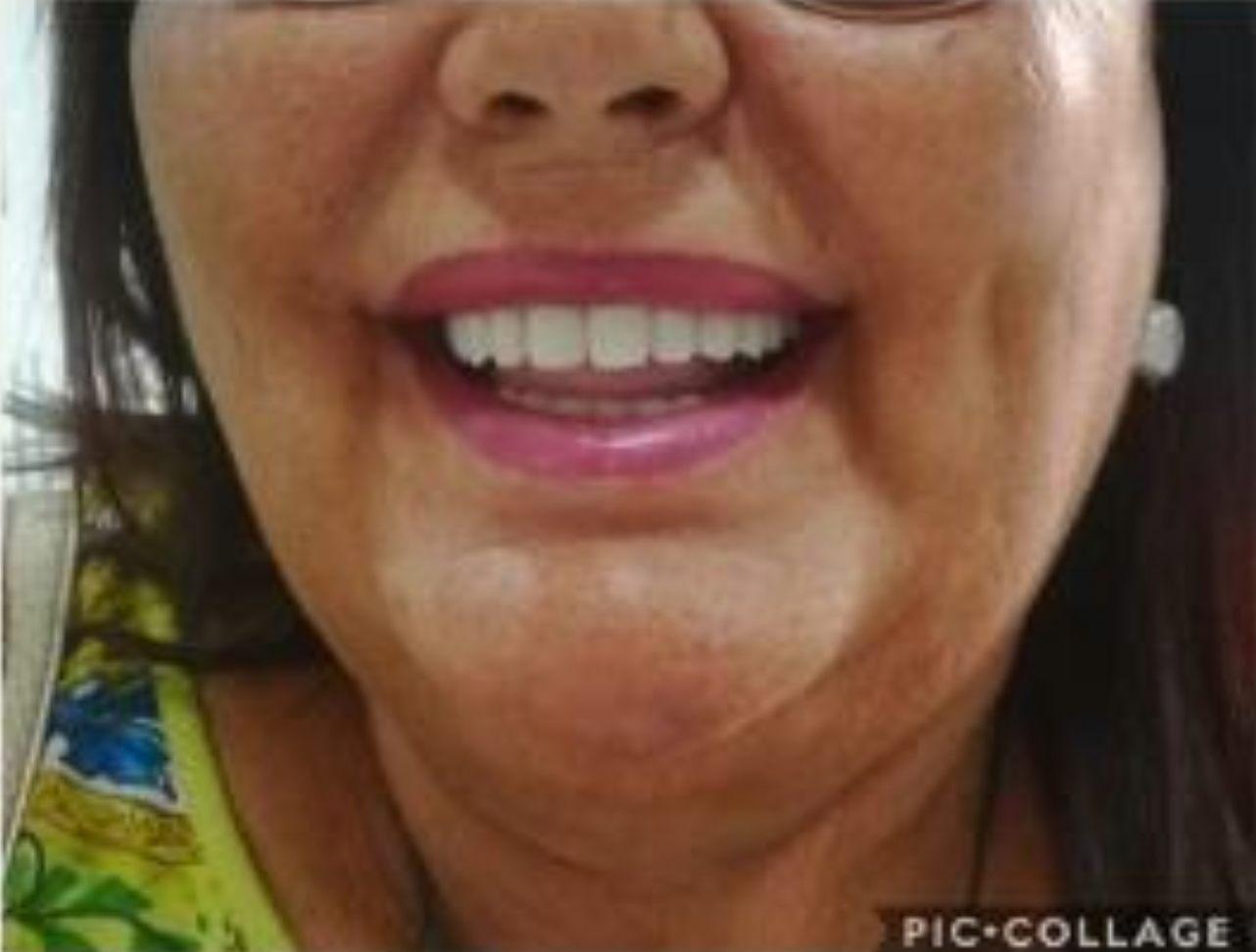 recuperar masticacion y estetica dental despues