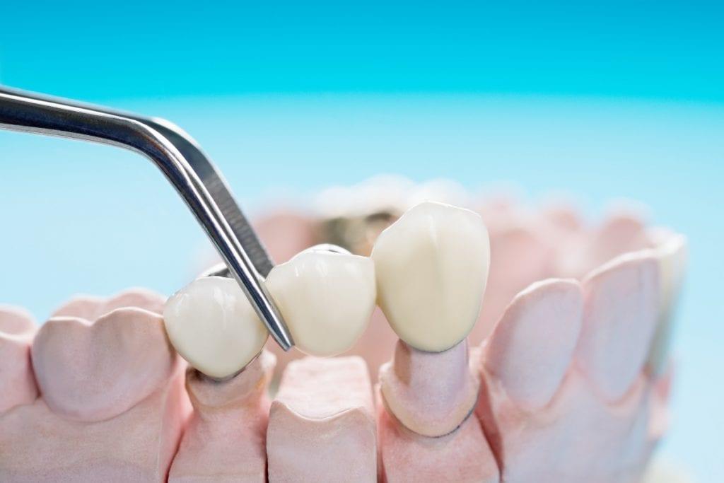Preguntas frecuentes sobre puentes dentales