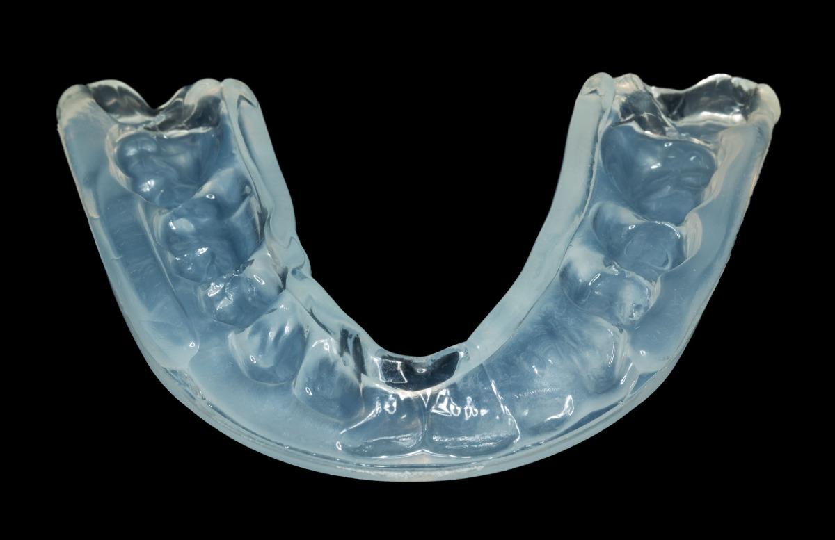 ¿Para qué sirven las férulas dentales?
