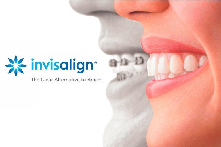 Invisalign: la ortodoncia invisible de la que todos hablan
