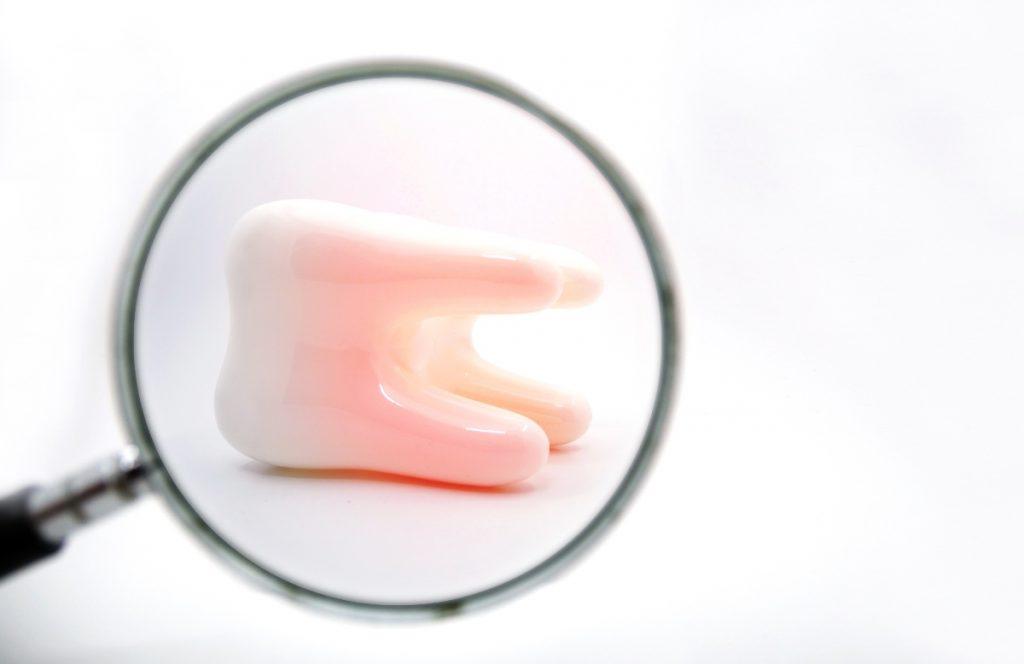 ¿Cuáles son las causas del dolor de muelas?