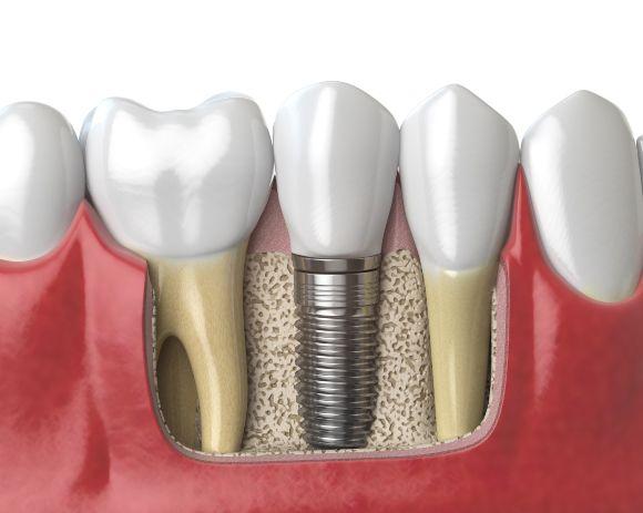 implantes-dentales-de-titanio