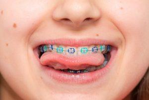 ¿Por qué llevar a los niños al ortodoncista?