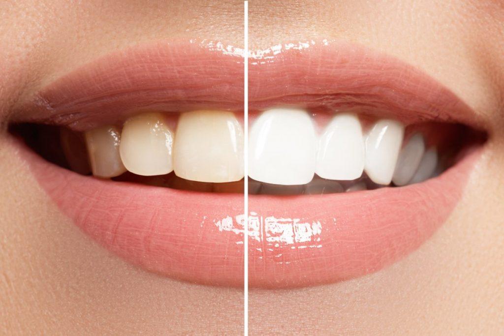 ¿Cómo se realiza el blanqueamiento dental en la clínica?