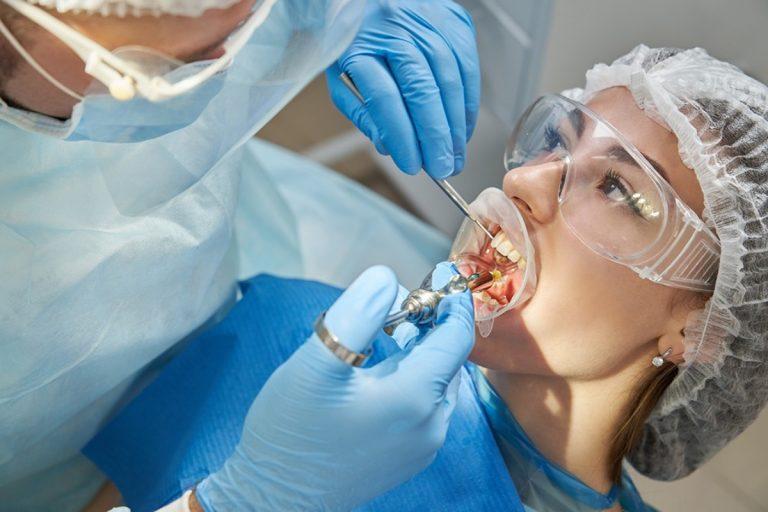 Respondemos a las preguntas más frecuentes sobre cirugía bucal