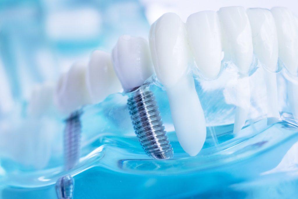 Cuidado postoperatorio de implantes dentales