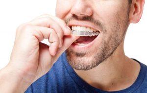 Ortodoncia Invisalign para adultos: ¡todo ventajas!